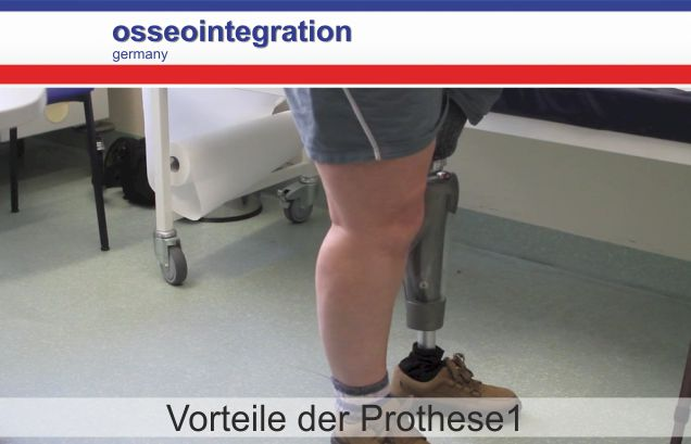 osseointegration germany